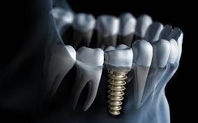 ایمپلنت دندان-تکنوپل